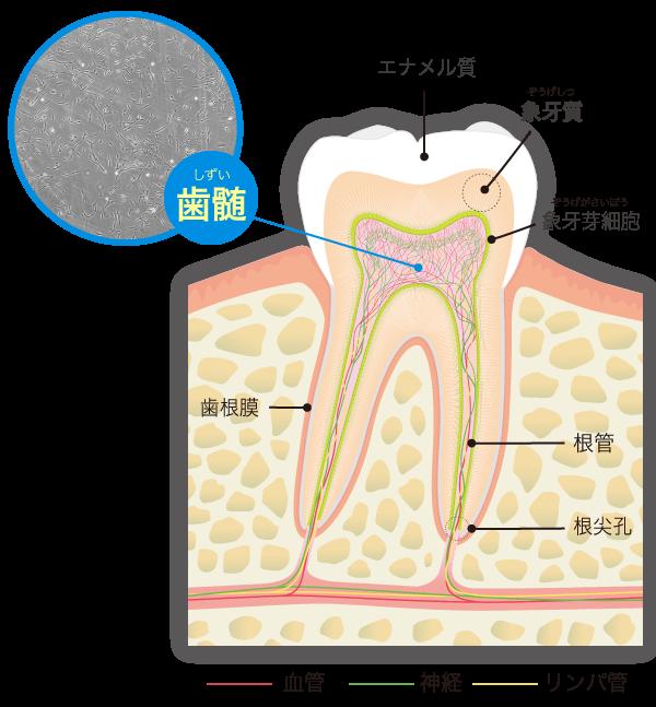 歯髄再生治療